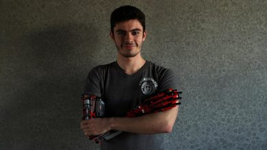 Photo of Brick by Lego brick, teen builds his own prosthetic arm